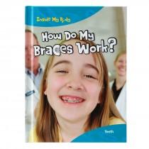 How Do My Braces Work Book