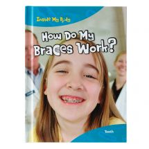 How Do My Braces Work Book